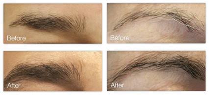 Lash Enhancing Serum by Skin Research Laboratories #17